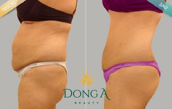 hình ảnh trước sau giảm béo