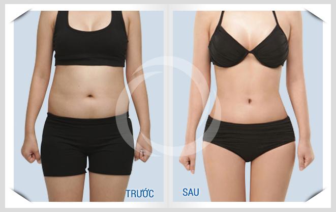Kết quả giảm béo bằng công nghệ B3D Lipo