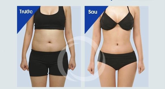 Kết quả ưu việt từ cách làm giảm mỡ bụng nhanh nhất