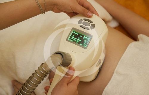 Giảm mỡ bụng dưới nhanh và hiệu quả với Body Laser