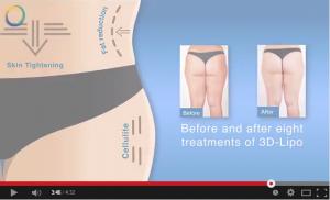Video Giảm mỡ Lipoc4D – công nghệ giảm béo tiên tiến từ Hoa Kỳ