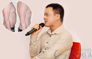 Anh Hoàng Văn Nhật – Giảm 17 cm vòng bụng và eo