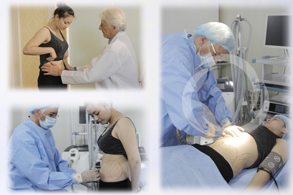 3D Lipo  - Cách giảm béo nhanh chóng và an toàn nhất