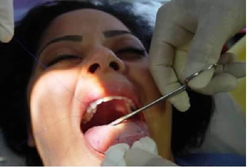 Khâu lưỡi để giảm cân