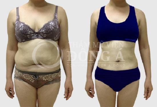 Kết quả giảm béo đáng kinh ngạc của chị Lý