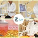 Công nghệ giảm béo bụng nhanh nhất 3DLipo Plus – Hiệu quả triệt để, an toàn