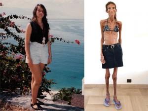 Chế độ ăn kiêng sai lầm ảnh hưởng như thế nào đến cơ thể