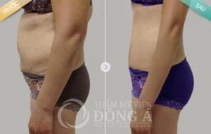 Giảm 5kg trong 1 tuần khi áp dụng cách giảm cân cấp tốc bạn có tin không?