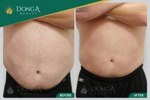 Top 3 cách giảm mỡ bụng cho nam giới hiệu quả nhất