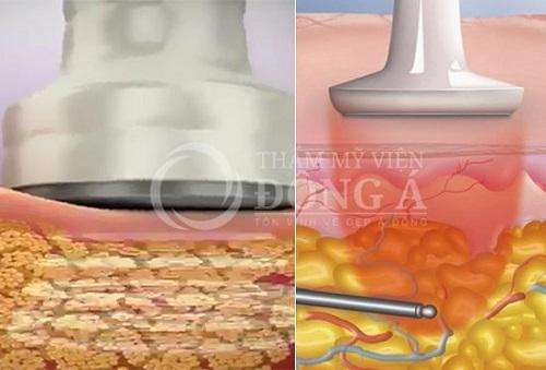 Phương pháp giảm mỡ bụng cho nam 3D Lipo Plus