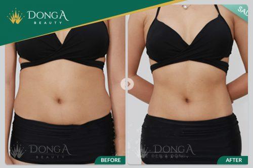 kết quả sau giảm béo