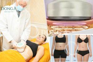 3D Lipo Plus – Dịch vụ giảm béo sau sinh uy tín tốt nhất hiện nay