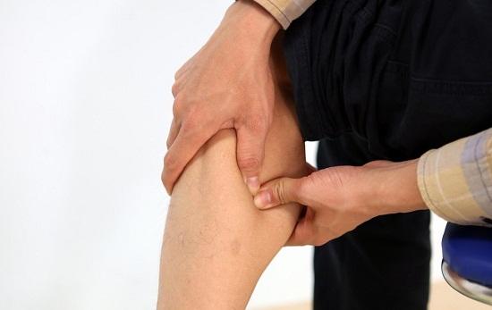 Có nên hút mỡ bắp chân? 4 tiêu chí lựa chọn địa chỉ uy tín 1